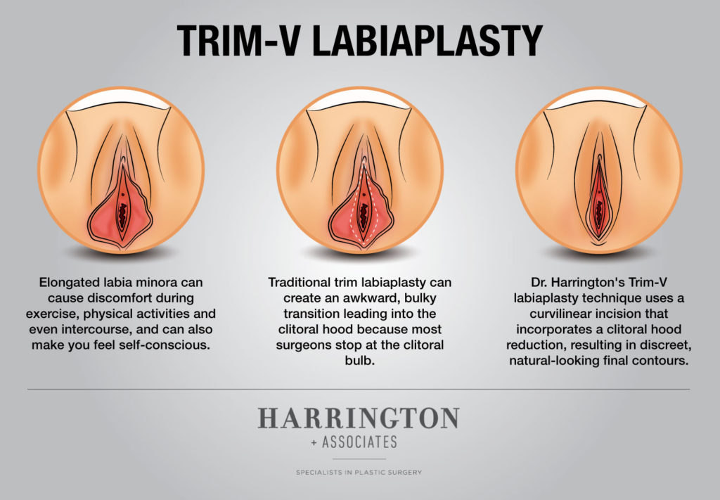 Harrington Labiaplasty Trim V Labiaplasty